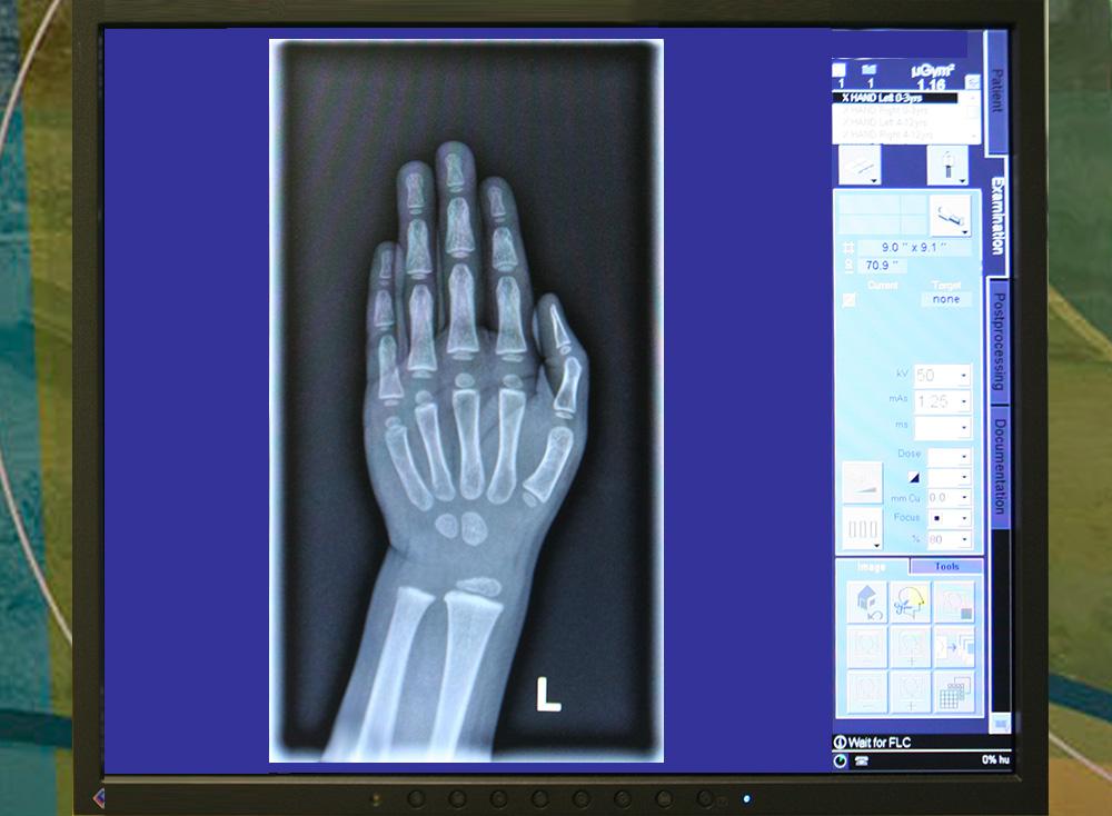X Ray Tests Amp Procedures Golisano Children S Hospital