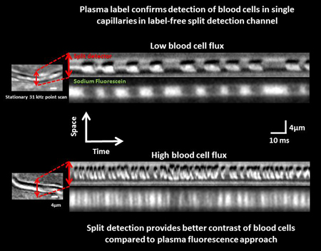 Imaging individual red blood cells in single capillaries without contrast agents