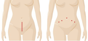 Endometriosis_Incision_Comparison