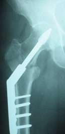 Dynamic Helical Hip System in an intertrochanteric fracture