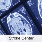 Stroke Center at Highland Hospital, Rochester, NY