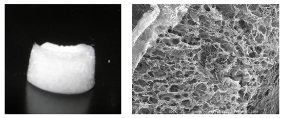 Photo of cartilage scaffolds