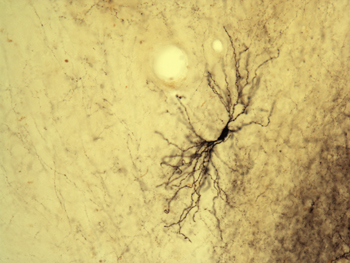 Photo of histological staining of neuron complex