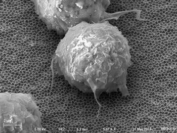 Scanning electron micrograph of macrophage