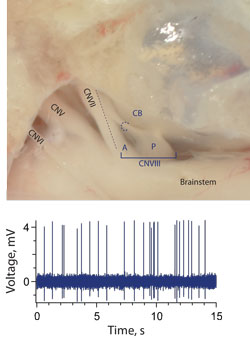 Anatomical location for direct recordings from efferent neurons.