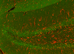 Astrocytes in HZE irradiated hippocampus