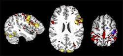 Language and motor networks from t-fMRI (yellow and blue) and rs-fMRI (red) in a patient with epilepsy