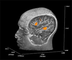 Pre-surgical language mapping with fMRI
