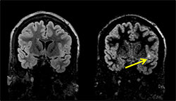 Cortical lesion in the mesial left temporal lobe  identified only on DIR (right) MRI and not on standard CUBE T2 FLAIR (left).