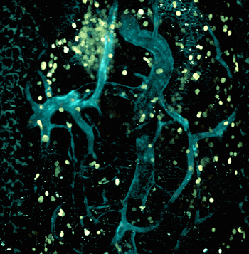 Image of an influenza infected trachea obtained by multiphoton microscopy