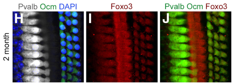 Foxo3 expressed in cochlea