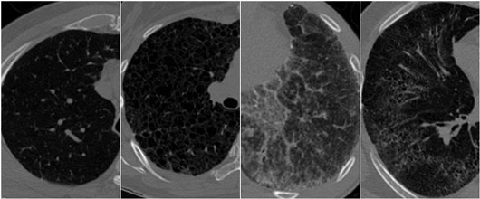 Interstitial Lung Disease Classification on High-resolution Chest CT