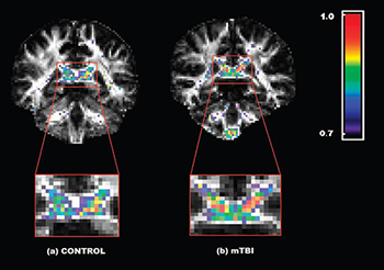 Clinical diffusion imaging