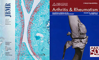 Image of JBMR and Arthritis & Rheumatism journals