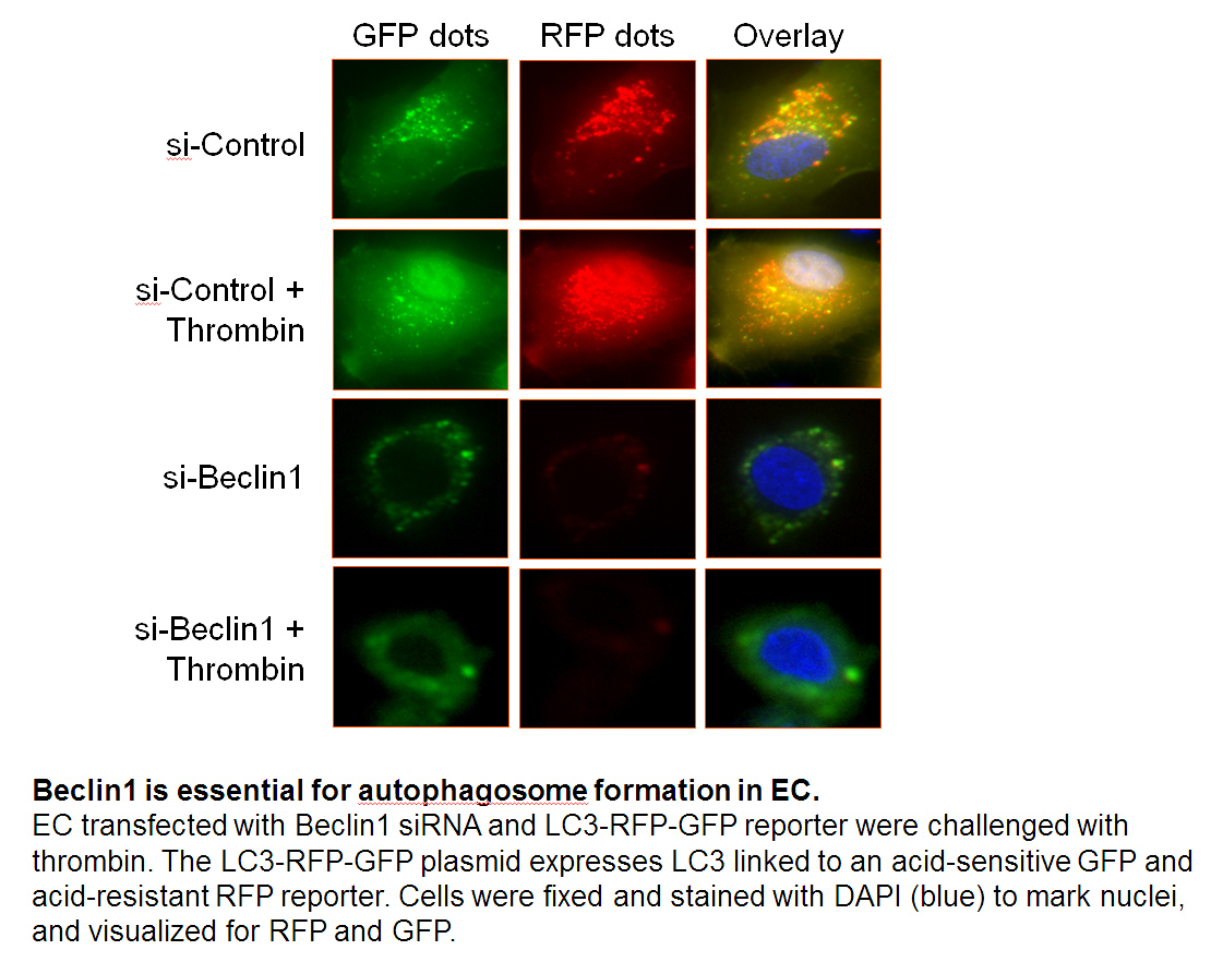 Beclin1 is essential for autophagosome formation in EC