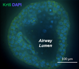 Immunofluorescent image of airway grown from a single Keratin 5+ cell
