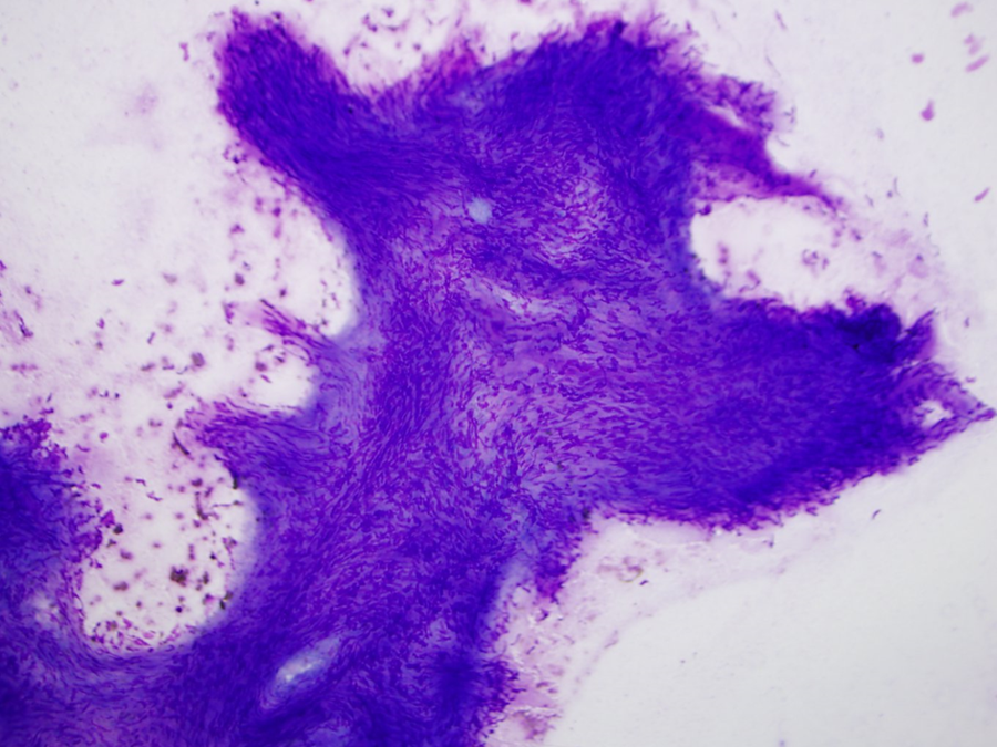 Fascicles of spindle shaped tumor cells showing streaming with fibrillary magenta stroma (Giemsa stain 10X ).