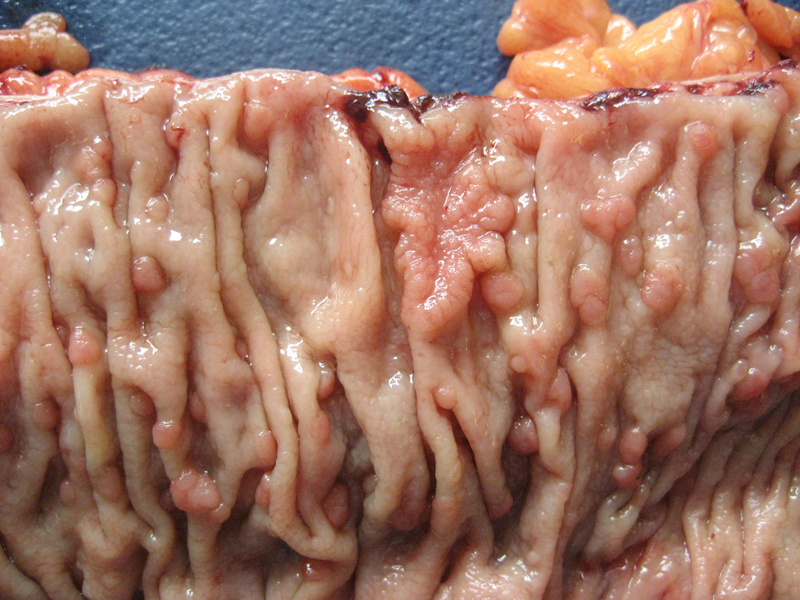 Figure 2. Portion of total colectomy specimen with numerous small sessile mucosal polyps. Image courtesy of K. Weyhing, PA (ASCP)CM.