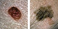 Photo comparing normal and melanoma moles showing diameter