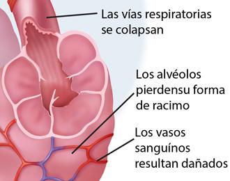 Recorte de las vías respiratorias colapsadas. Los sacos de aire han perdido de forma agrupada y los vasos sanguíneos están dañados.