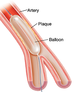 Cross section of artery with plaque showing balloon angioplasty.