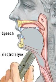 Illustration of an artificial larynx