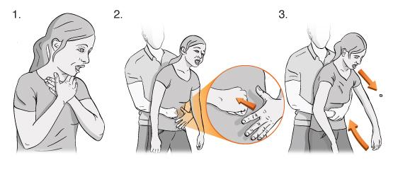 Ilustración de una mujer atragantándose, un hombre tomándola alrededor del estómago desde atrás y utilizando su puño y su mano para realizar la maniobra de rescate.