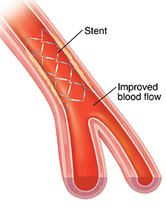Cross section of artery showing blood flow through stent.