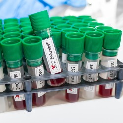 Use the COVID-19 Biobank to Support Your Coronavirus Research