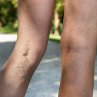 Varicose Veins: Why We Get Them and What Can Help