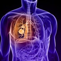 Telomeres Might Predict Lung Cancer Recurrence