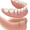 "New Denture ""a world of difference"" for Patients"