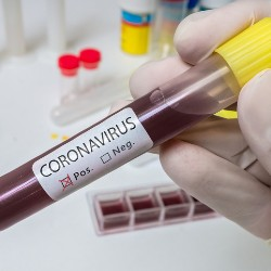 COVID-19 Biobank Helps Researchers Share Patients' Samples