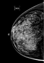 Mammography image of extremely dense breast