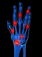 Graphic of arthritic hand with joint inflammation