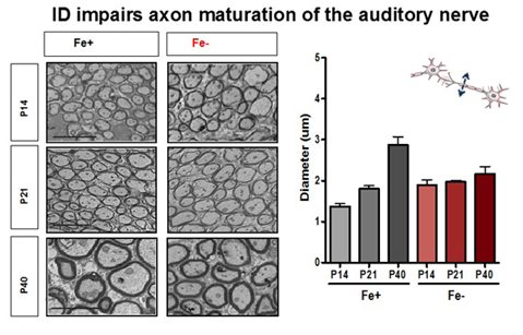 ID impairs axon maturation of the auditory nerve