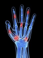 Hand joint pain