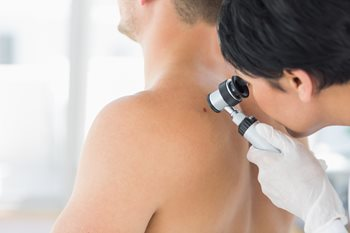 Doctor checking a person's back for skin cancer