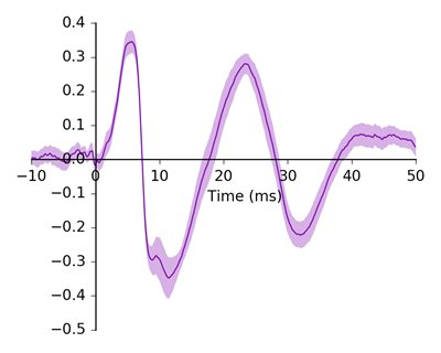 Graph of Aud brainstem responses