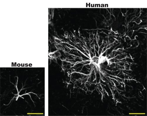 Image of Human vs. Rodent Astrocyte