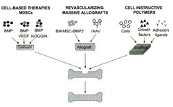 Schematic model of strategies that combine stem cell technology and gene therapy to tissue engineer bone as described in (Corsi et al., 2007).