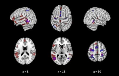 Illustriation of brain mri