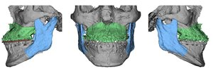 3-D of surgical planning