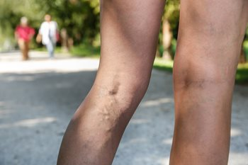 woman's bare legs with varicose veins