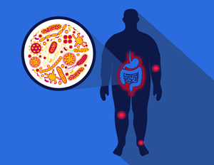 diagram of an obese person's gut microbiome and joint pain related to osteoarthritis