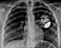 x-ray of defibrillator implantation