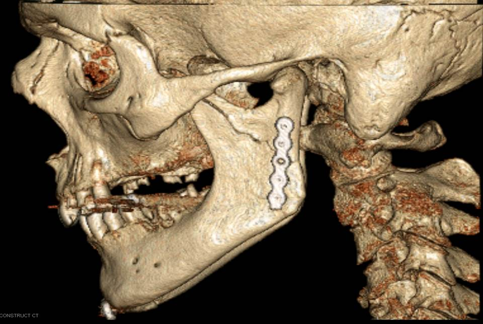 Maxillo facial and oral surgeon