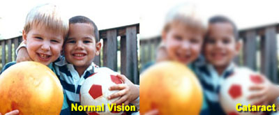 Normal vs Cataract Vision