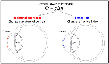 Cornea and Lens Research_IRIS