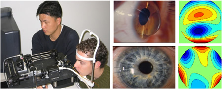 Cornea and Lens Research_Yoon